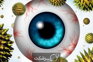 شایعترین علت خارش چشم چیست؟