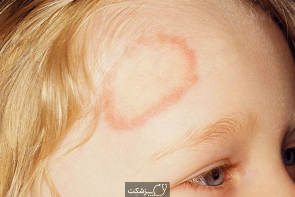 عفونت کرم حلقوی در کودکان چیست؟ | پزشکت