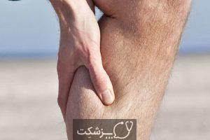 علت ورم غدد لنفاوی کشاله ران چیست؟ | پزشکت