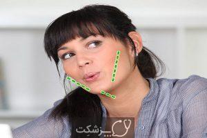 چانه دوتایی یا گردن مضاعف چیست؟ | پزشکت