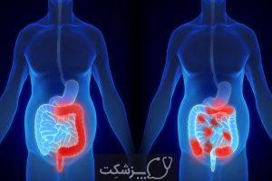 چرا دچار اسپاسم عضلانی معده می شوم؟ | پزشکت