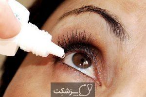 شایعترین علل خارش چشم چیست؟ | پزشکت