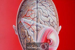 برآمدگی یا بیرون زدگی رگ های خونی | پزشکت