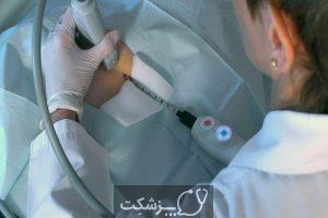 کرایوتراپی | پزشکت