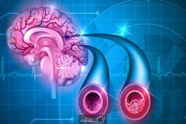 علائم آسیب به ناحیه راست و چپ مغز چیست؟ | پزشکت