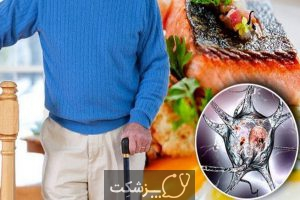 رژیم غذایی در بیماری پارکینسون | پزشکت