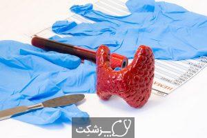 هیپوپاراتیروئیدیسم | پزشکت
