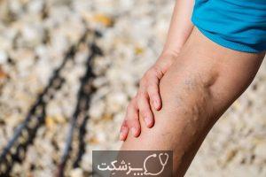 شایع ترین علائم گردش خون ضعیف چیست؟ | پزشکت