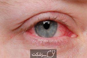 آیا چشم صورتی علائم COVID-19 است؟