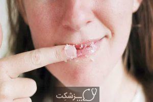 راهکارهای مراقبت از لب در زمستان   پزشکت