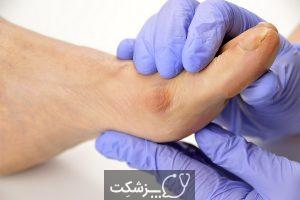 جراحی قوز شست پا چیست؟