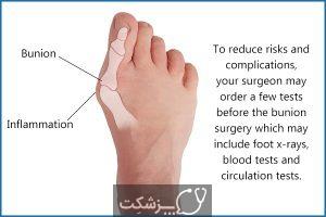 جراحی قوز شست پا   پزشکت