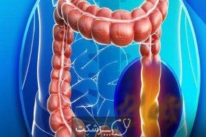سندرم روده نشتی | پزشکت