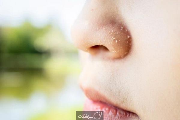 درمان خانگی خشکی پوست | پزشکت