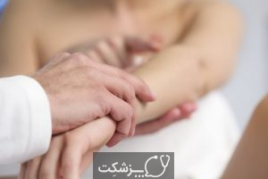 درمان خانگی عفونت کرم حلقوی کودکان | پزشکت