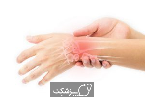 پیچ خوردگی مچ دست، از علائم تا درمان | پزشکت