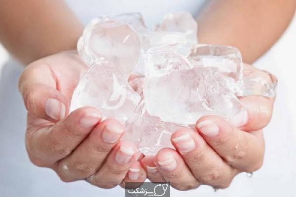 یخ درمانی چیست؟ | پزشکت