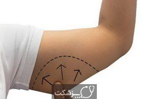 جراحی لیفت بازو چه خطراتی دارد؟ | پزشکت