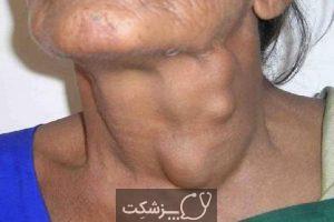 سرطان گردن و سر چیست؟ | پزشکت