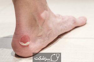 مشکلات پوستی در دیابتی ها | پزشکت