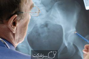 لیفت ران | پزشکت