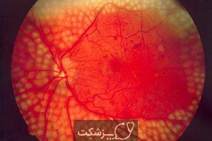 شایع ترین عوارض چشمی دیابت | پزشکت