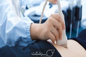 آزمایشات غربالگری قبل از تولد چیست؟ | پزشکت