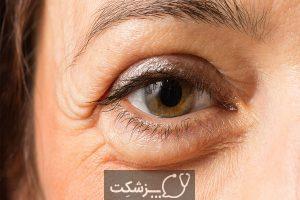 علائم چهره و وضعیت سلامتی بدن | پزشکت