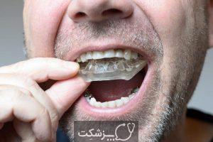 علت حس طعم فلز در دهان چیست؟ | پزشکت