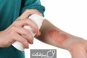 مارگزیدگی | پزشکت