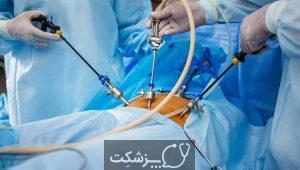 آندوسکوپی | پزشکت