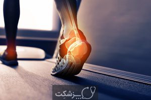 چرا پای من درد می کند؟ | پزشکت