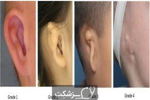 بیماری های مادرزادی گوش | پزشکت