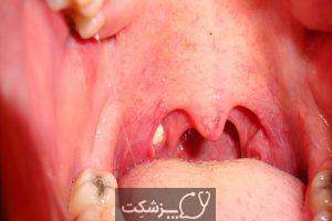 التهاب لوزه | پزشکت