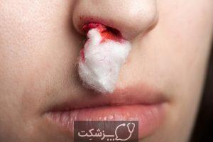 خونریزی خطرناک کدامند؟ | پزشکت