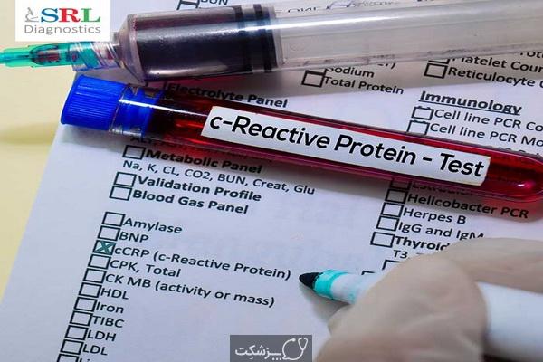 آزمایش CRP چیست؟   پزشکت