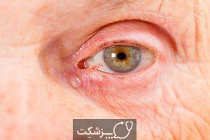 انواع سرطان های چشم | پزشکت
