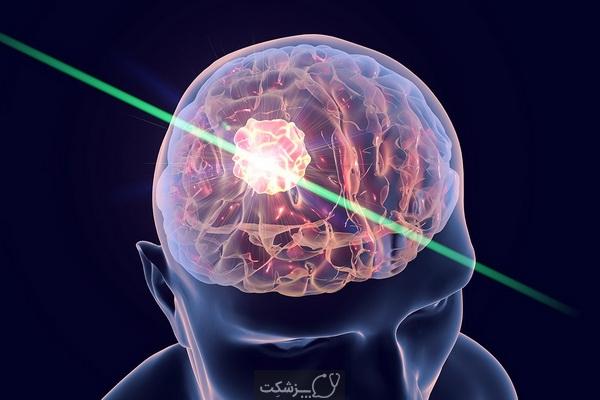 تومورهای مغز و اعصاب چیست؟