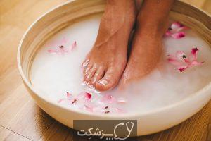 درمان سوزش کف پا | پزشکت