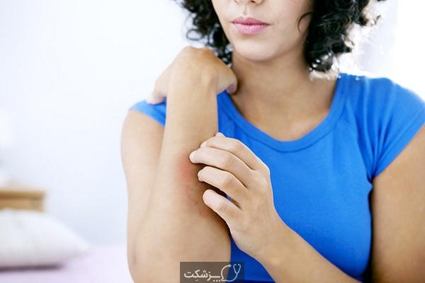 کهیر بعد از زایمان | پزشکت