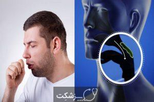 شایع ترین علت سرفه خشک   پزشکت