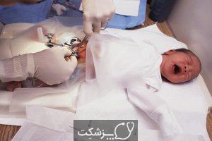 ختنه در نوجوانان | پزشکت
