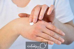انگشتان 19 COVID از عوارض نادر کرونا | پزشکت