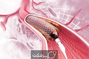 آنژیوپلاستی | پزشکت