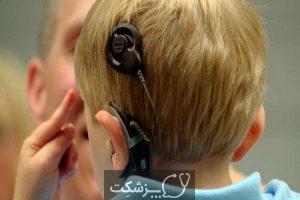 کاشت حلزون گوش چگونه انجام می شود؟ | پزشکت