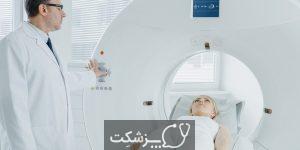 جراحی مغز با اشعه گاما | پزشکت