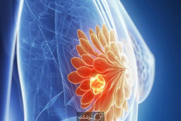 سرطان متاستاتیک پستان   پزشکت