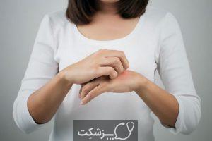 بیماری کندن پوست | پزشکت