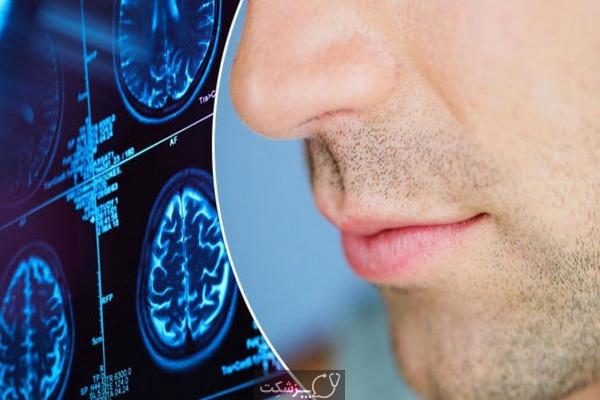 از دست دادن طعم و بو از علائم کرونا | پزشکت