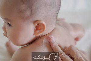 پماد هیدروکورتیزون برای نوزادان | پزشکت